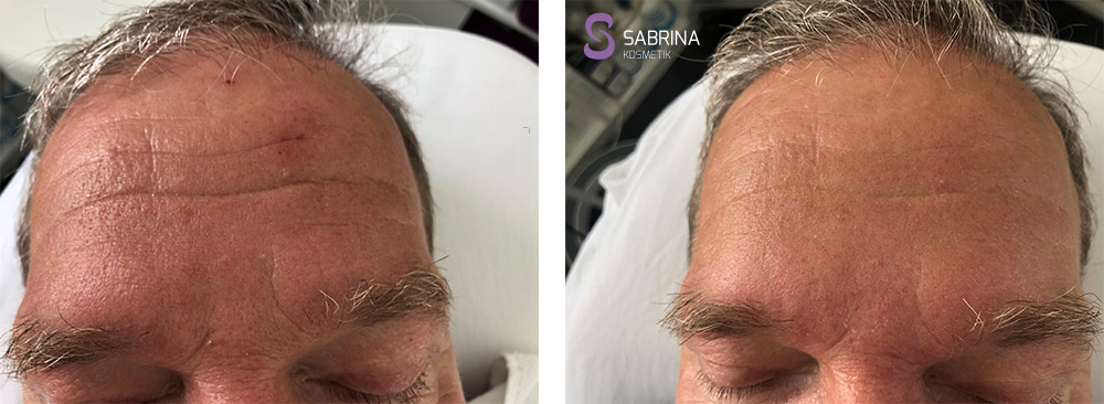 Vorher/Nachher: Notox Behandlung auf der Stirn (Mann)