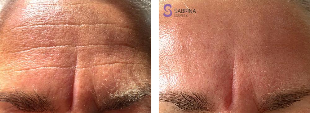 Vorher/Nachher: Notox Behandlung Stirnfalten
