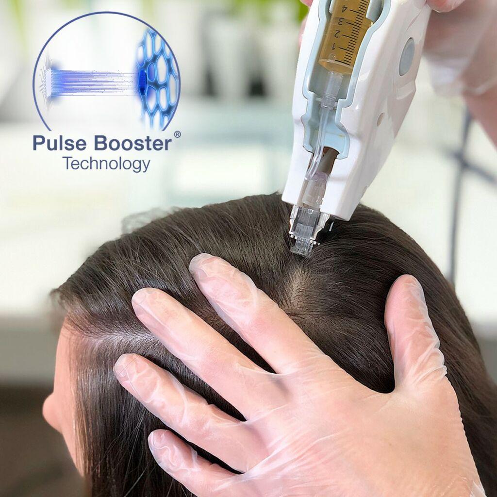 Mesotherapie, Haarausfall, Glatze. Kreisrunder Haarausfall, Glatze, keine Haare, Mesoject Gun, nadellos, Toskani, Anti Aging, Ästhetische Kosmetik